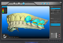 digital impressions system for tooth design