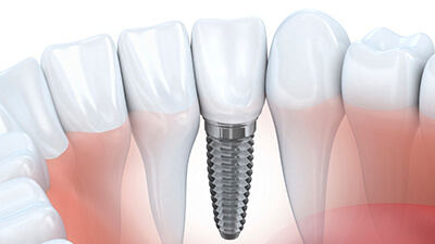 dental implants placement teeth model