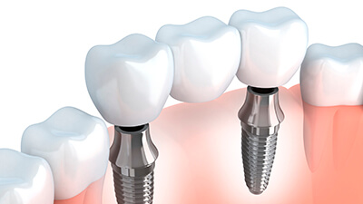 teeth model of dental crowns & bridges