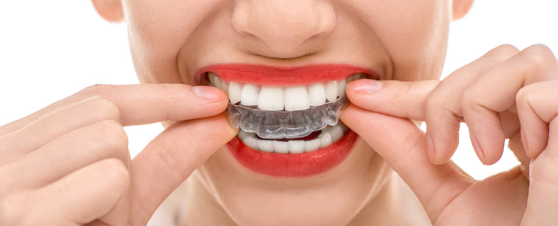 facts for invisalign